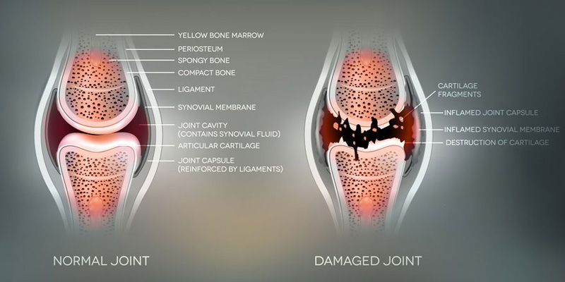 Does Running Damage Your Knees